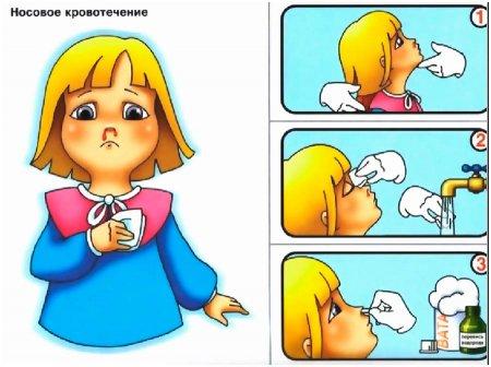 Оказание помощи при носовом кровотечении