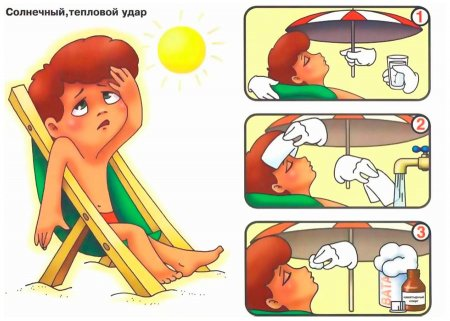 Оказание помощи при солнечном ударе