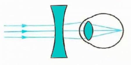 Коррекция близорукости с помощью рассеивающей линзы