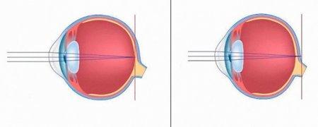 Нормальное зрение и дальнозоркость