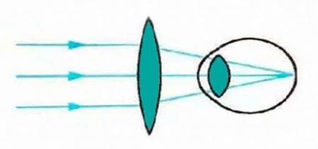 Коррекция дальнозоркости с помощью собирающей линзы